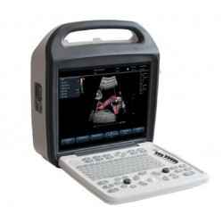 KCD-1000 (Color Doppler)  Standard Configuration---with 1 Convex array probe